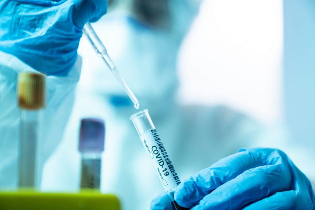 Teste molecular rápido por RT-PCR (GeneXpert)